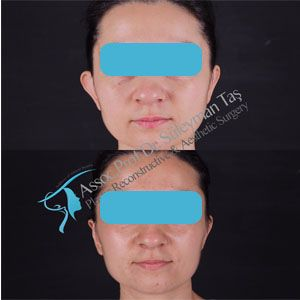 Face & prominent ear surgery before and after gallery