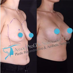 Breast augmentation before and after gallery