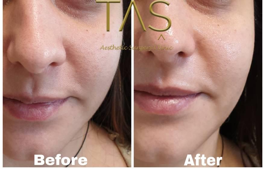 Taş® baby skin care