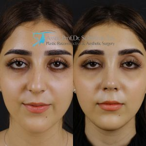 Best rhinoplasty before and after pictures