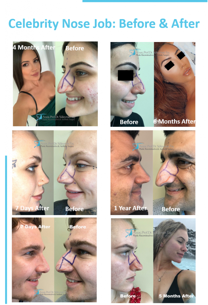 Nose Job Archives Assoc Prof Dr Suleyman Tas