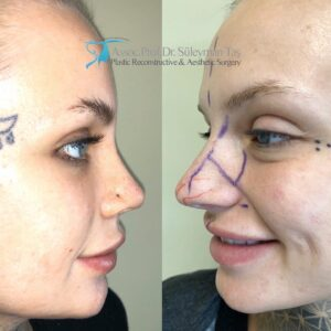 How long does it take to recover from a rhinoplasty?