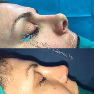 Revision rhinoplasty before and after pictures