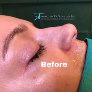 Thick Skin Bulbous Tip Rhinoplasty Before picture