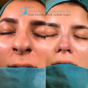 Thick Skin Bulbous Tip Nose Surgery for female patient