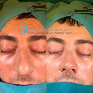 Thick skin bulbous tip rhinoplasty