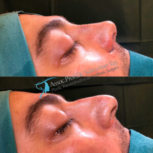 Thick Skin Bulbous Tip Nose Job for Male patient