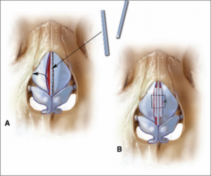 Nasal valve collapse