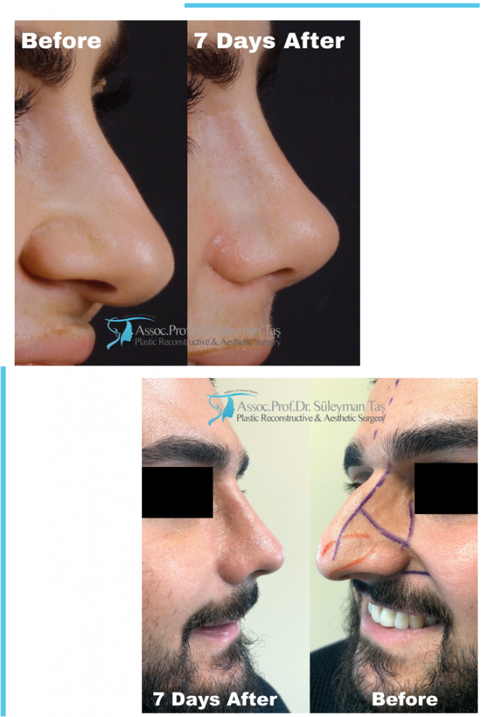 Thick Skin Bulbous Tip Rhinoplasty