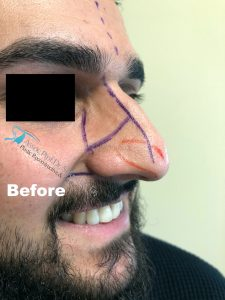 Celebrity Nose Job Thick Skin Male Patient Before Picture