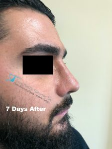 Celebrity Nose Job Thick Skin Male Patient After Picture