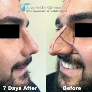 Celebrity Nose Job for Thick Skin Male Patient