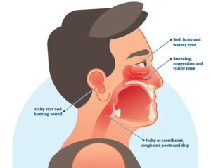 Allergic rhinitis and rhinoplasty