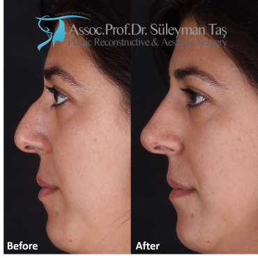 Nose Fillers before after