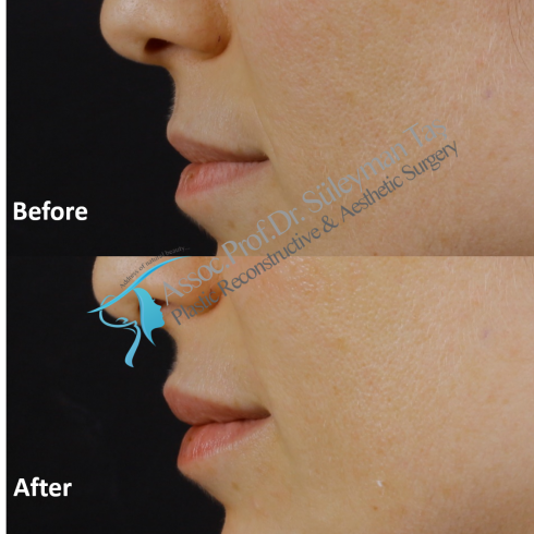 Lip filler from profile