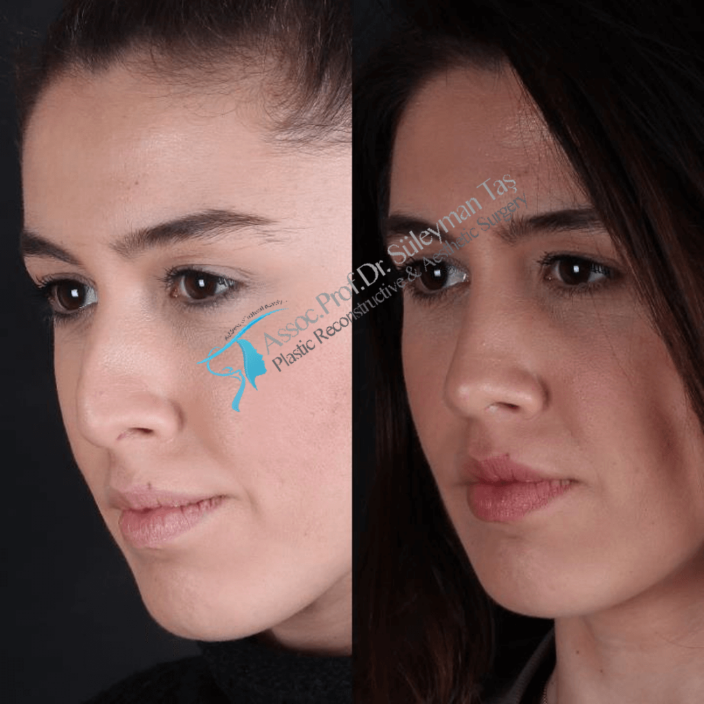 Rhinoplasty before and after gallery