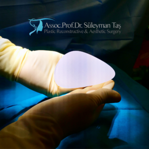 Breast implant selection for breast augmentation