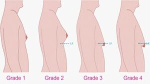 Breast deformities and treatments